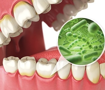 Microorganisms in the mouth that can lead to gum disease