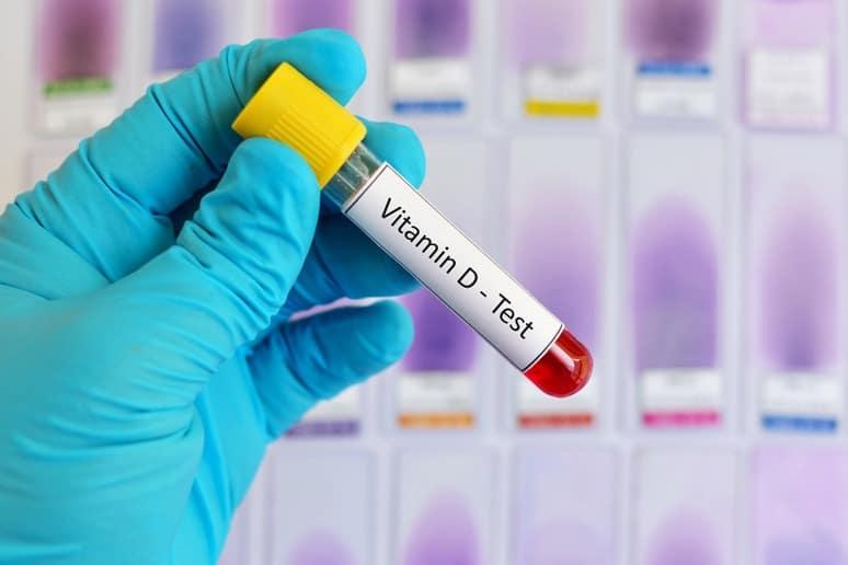 Blue Lab Glove Holds Vile of Vitamin D Test