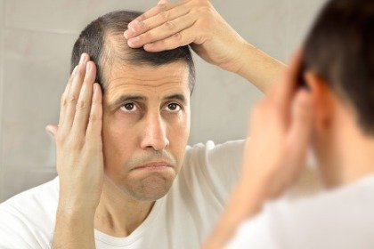 man looking at thinning hair in the mirror
